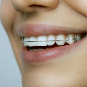 Beautiful smiling girl with retainer on teeth close-up
